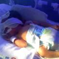 bebe-prematuro-incubadora