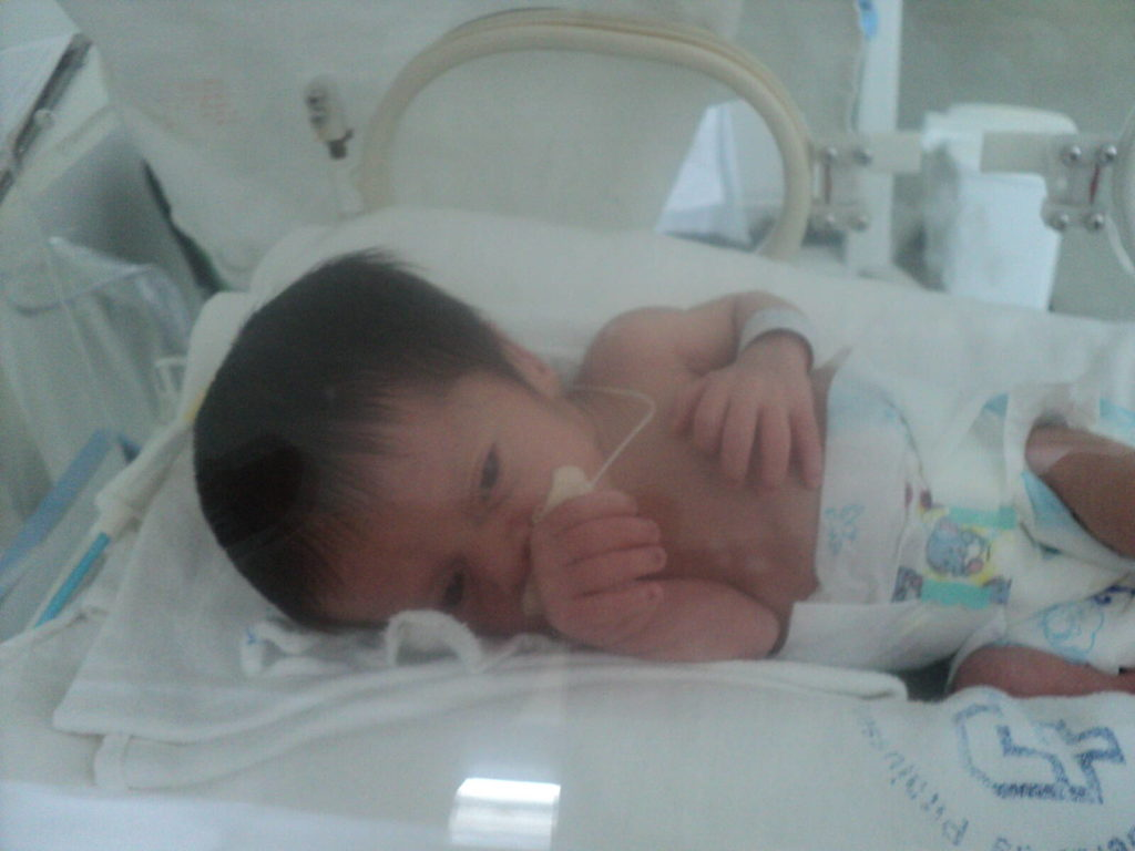 parto-prematuro-30-semanas